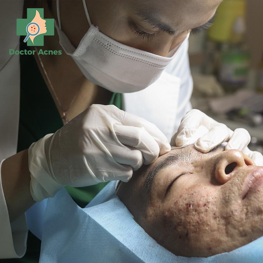 Bóc tách đáy sẹo PK Doctor Acnes