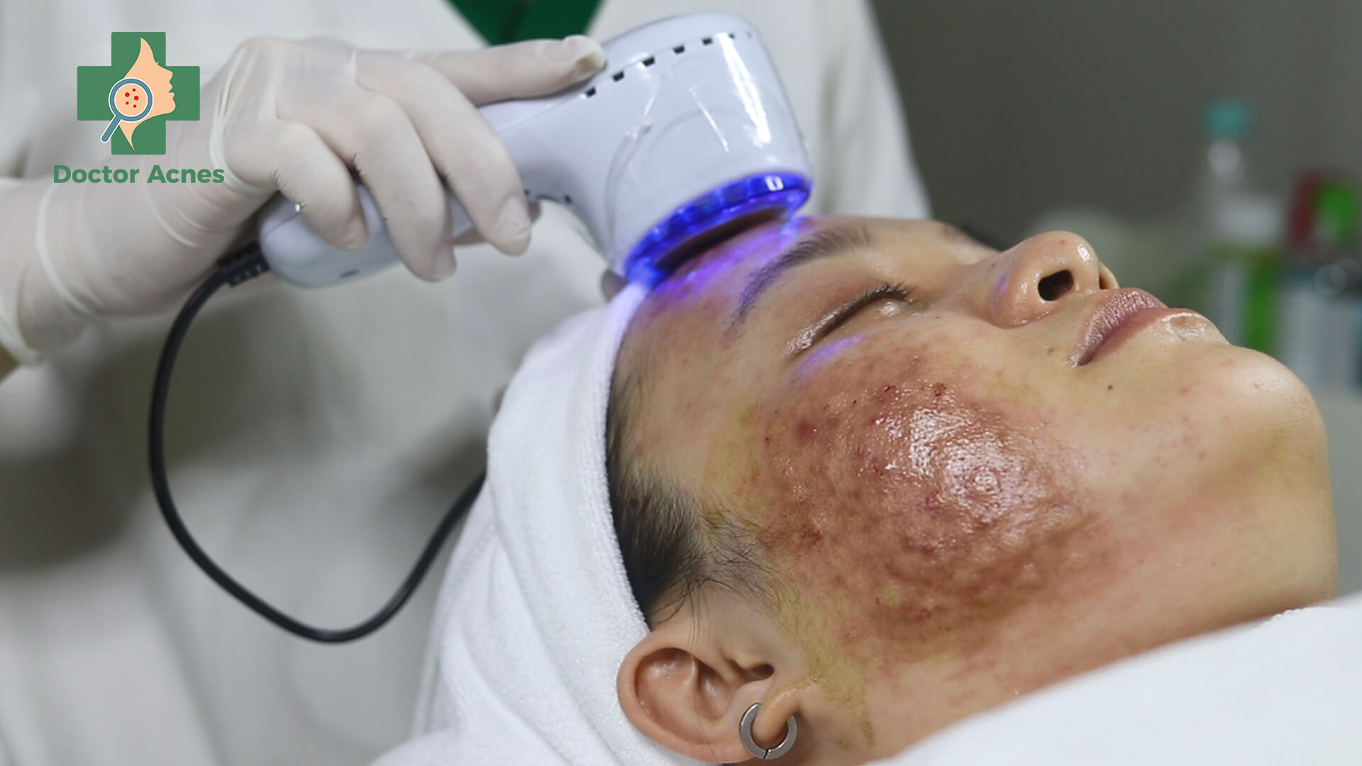 Sử dụng búa lạnh đã được vô khuẩn áp lên vị trí tiêm giúp thư giãn làn da và giảm độ phồng nốt tiêm
