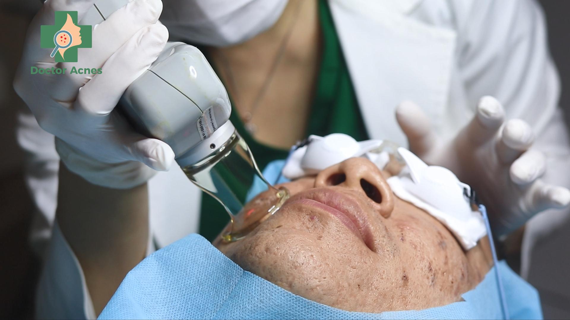 Bác sĩ thực hiện liệu trình trị sẹo Doctor Acnes