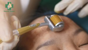 chế độ chăm sóc da sau trị sẹo