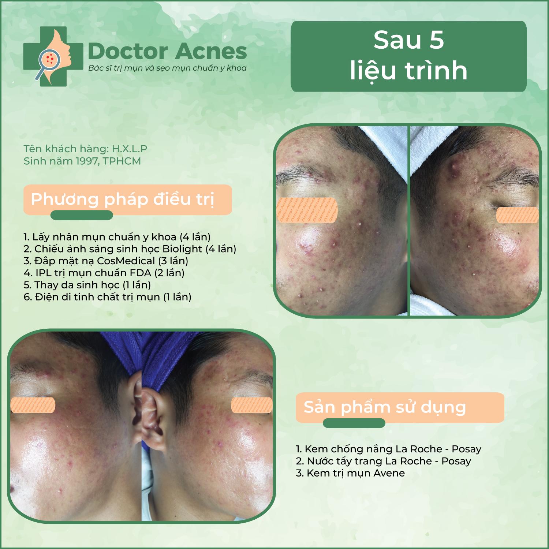 Hiệu quả trị mụn Doctor Acnes 01