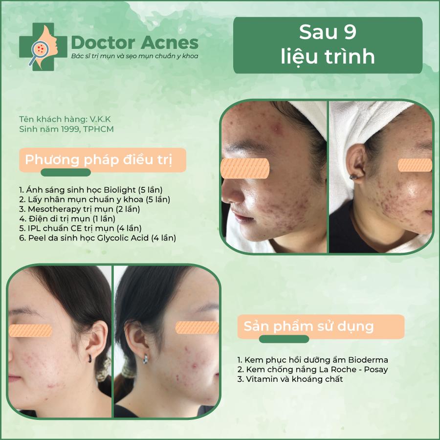 Hiệu quả trị mụn Doctor Acnes 02
