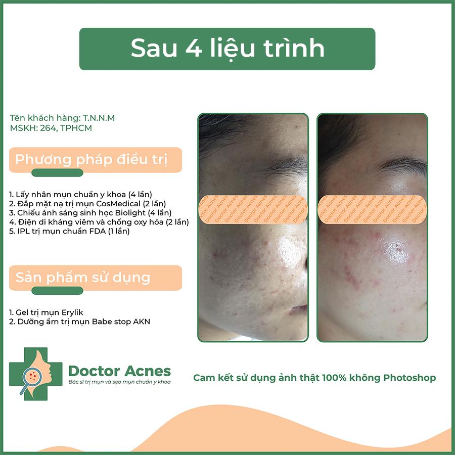 Hiệu quả trị mụn Doctor Acnes 07