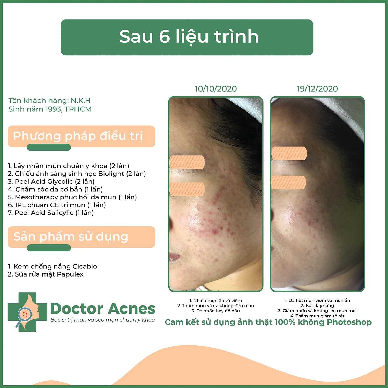 Hiệu quả trị mụn Doctor Acnes 6