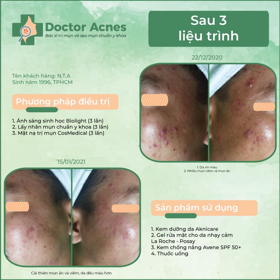 Hiệu quả trị mụn Doctor Acnes 8
