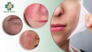 phân biệt tác dụng và biến chứng sau peel Doctor Acnes