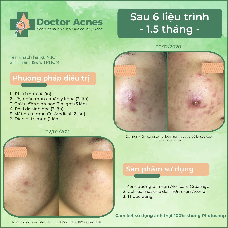 Hiệu quả trị mụn Doctor Acnes 0202