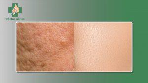 tuổi tác trong điều trị sẹo