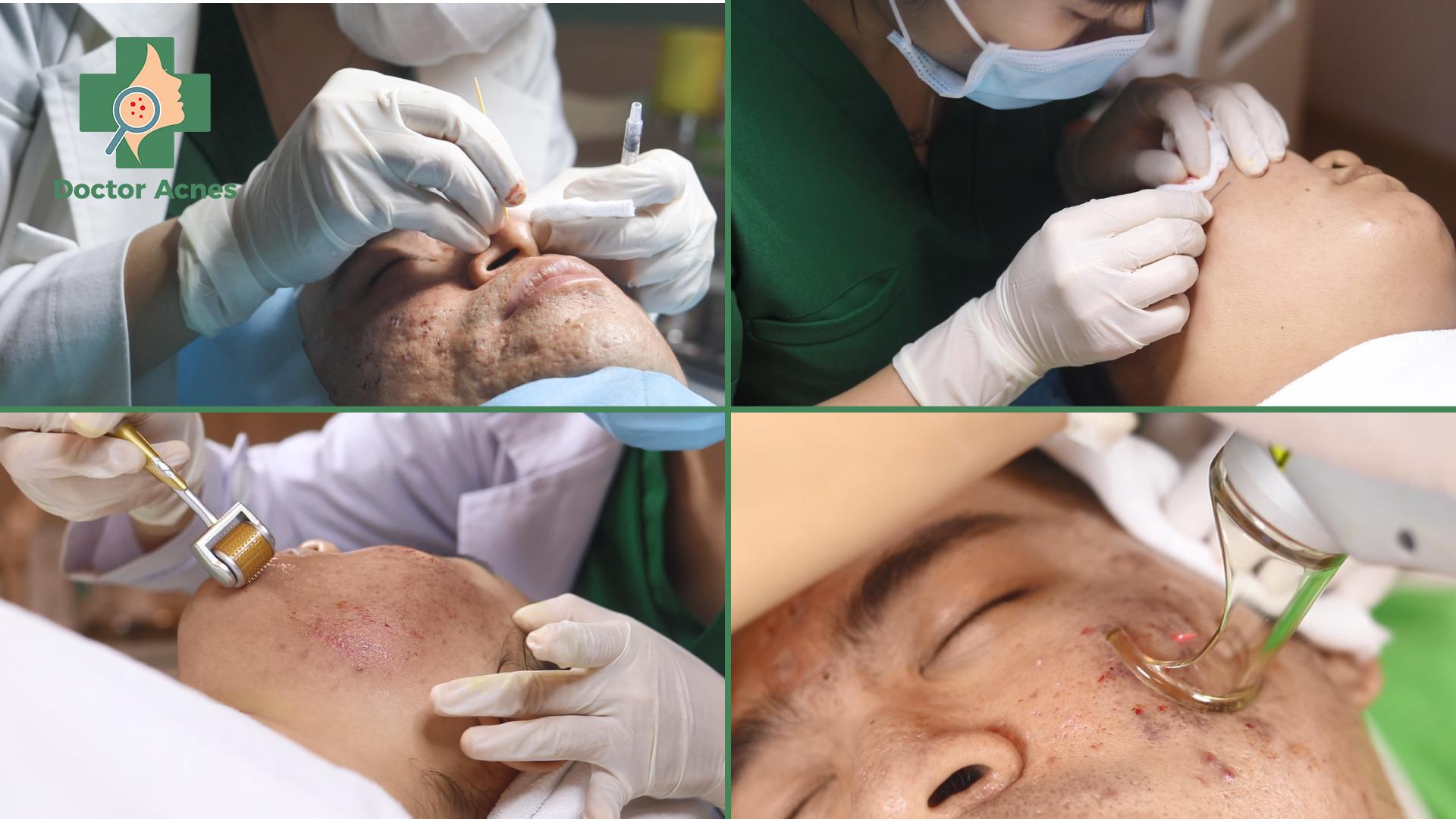 Các phương pháp trị sẹo điẻn hình Doctor Acnes