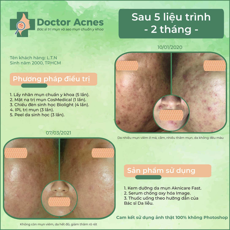 Hiệu quả trị mụn Doctor Acnes 0301