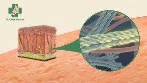 cơ chế tăng sinh collagen điều trị sẹo rỗ Doctor Acnes