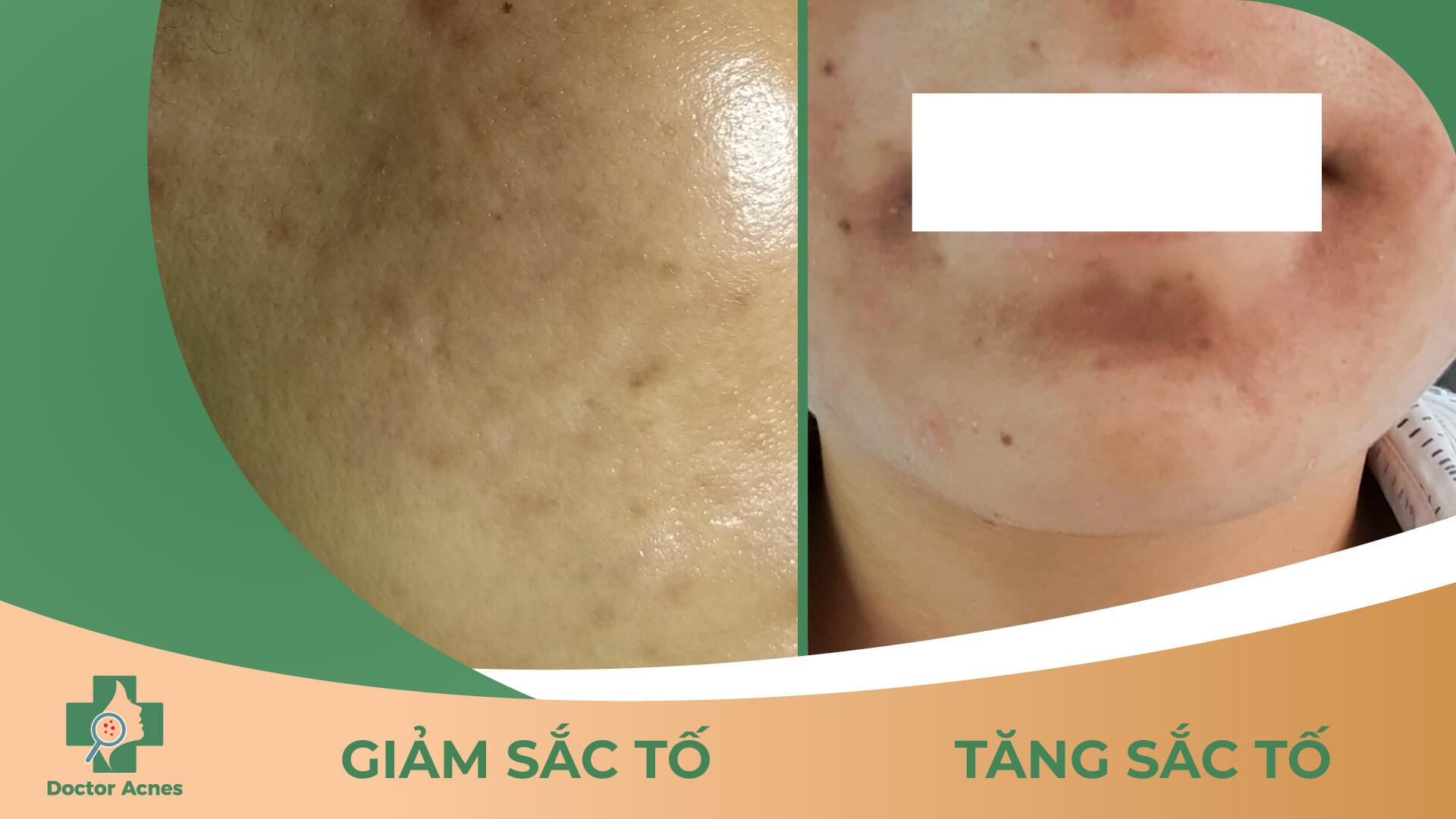 Biến chứng giảm sắc tố và tăng sắc tố sau khi peel da