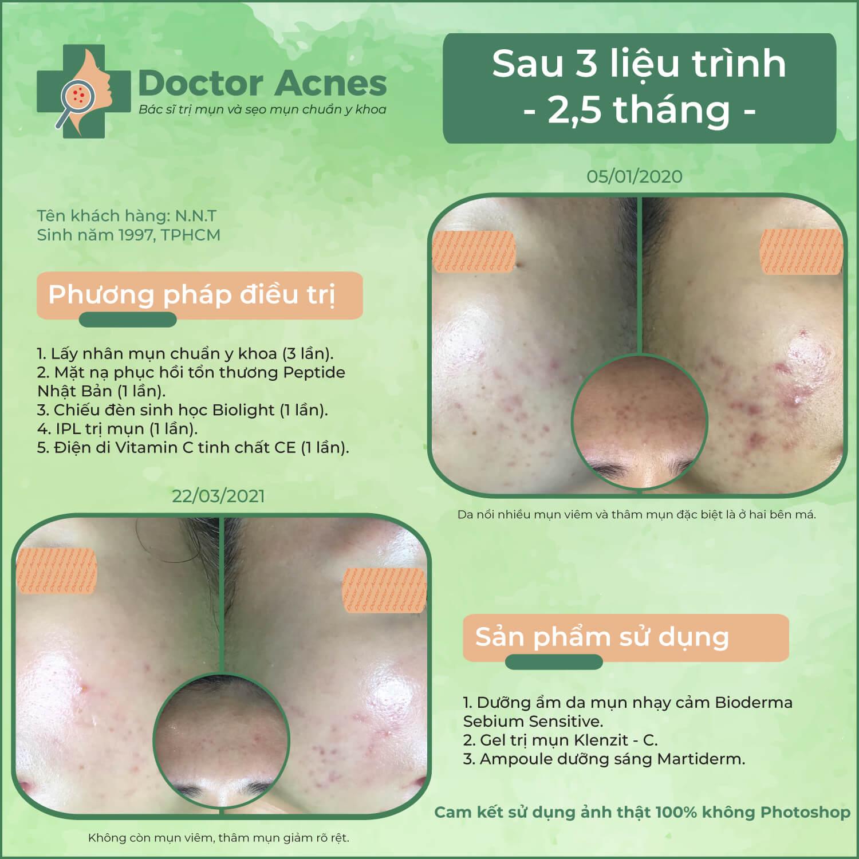 Hiệu quả trị mụn Doctor Acnes 0401