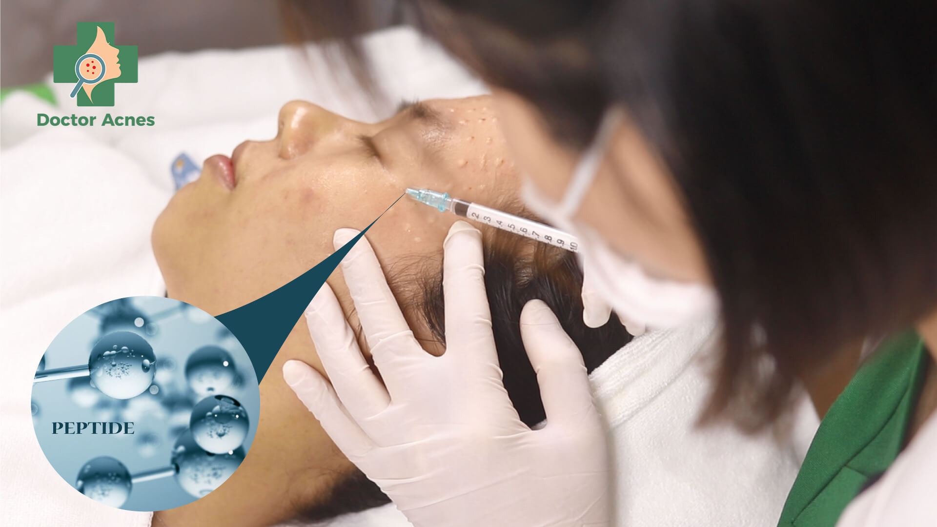 Peptide trong tiêm phục hồi - Doctor Acnes