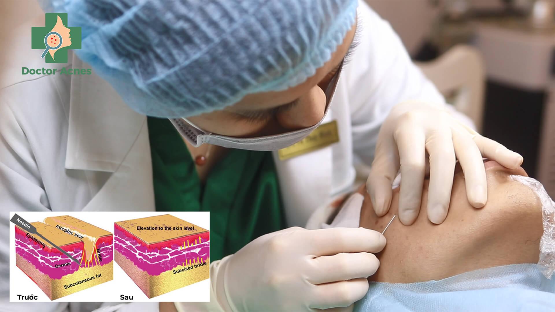 Phương pháp bóc tách đáy sẹo - Doctor Acnes