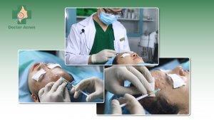 banner bài tiêm phục hồi - DrAcnes