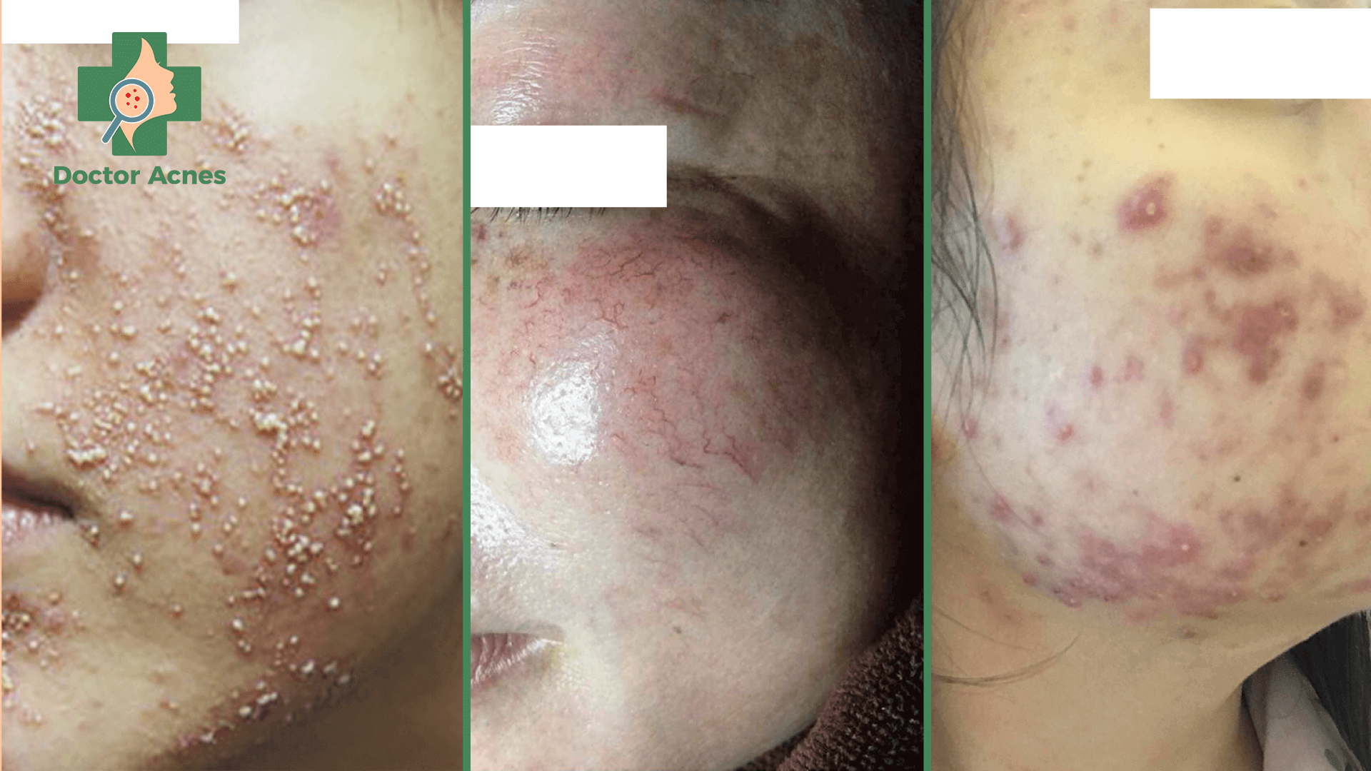 Các biến chứng trên da do Corticoid - Doctor Acnes