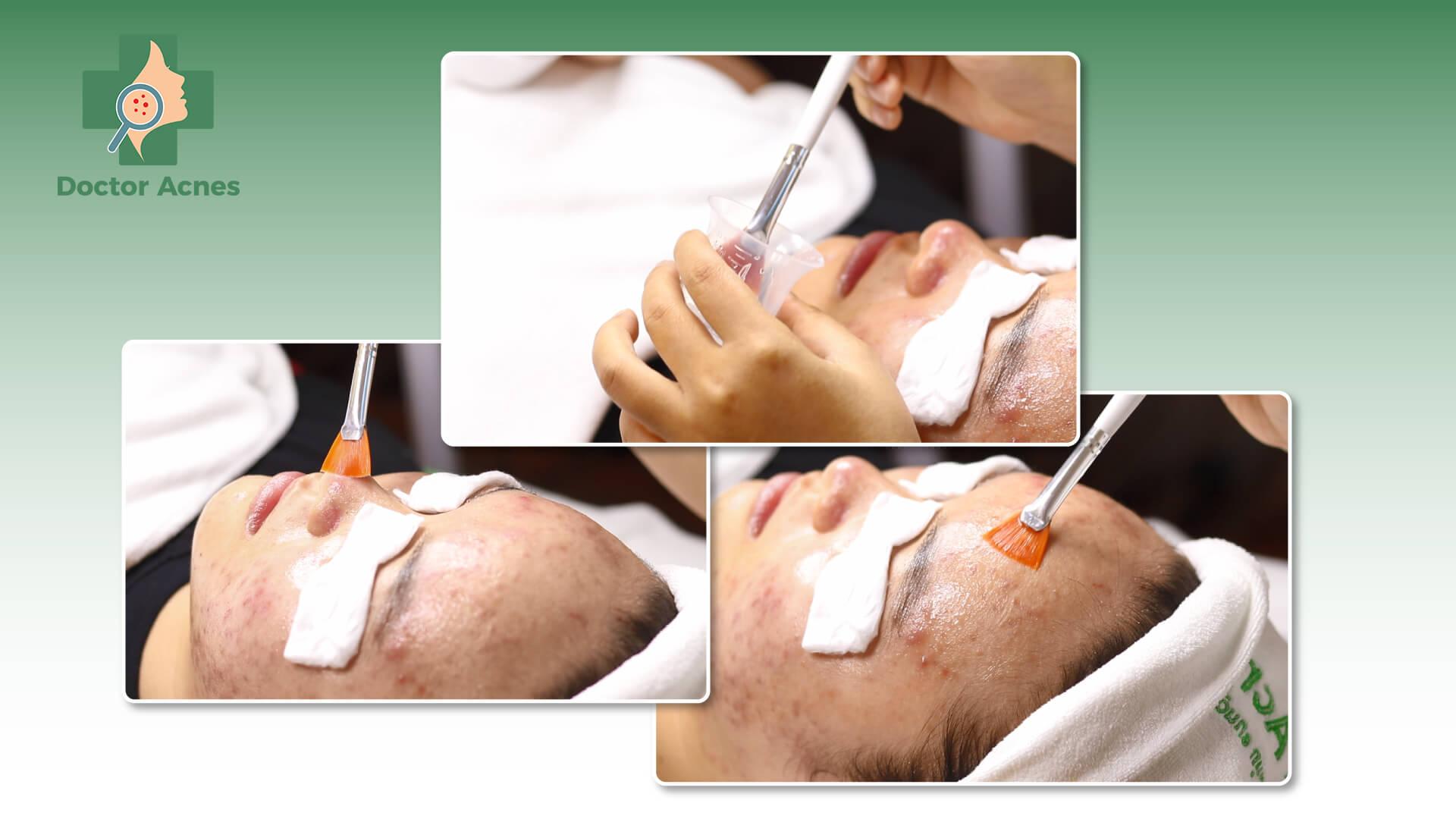 Peel da trong điều trị sẹo rỗ tại Doctor Acnes