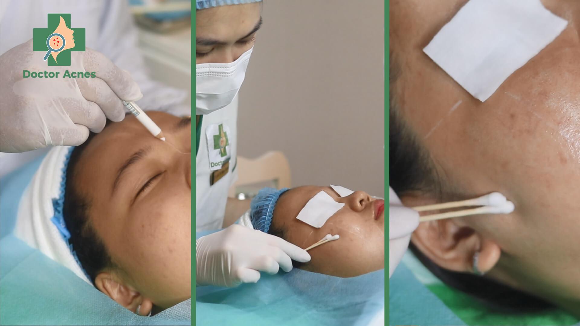 Phương pháp peel TCA - Doctor Acnes