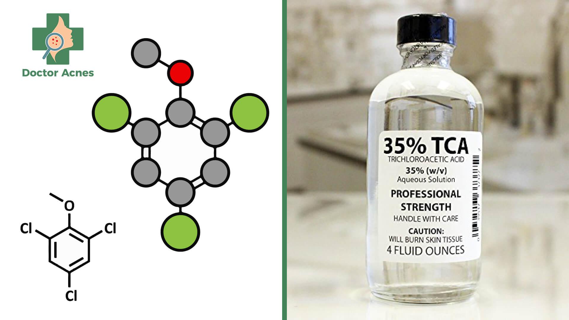 Trichloroacetic acid (TCA) là gì - Doctor Acnes
