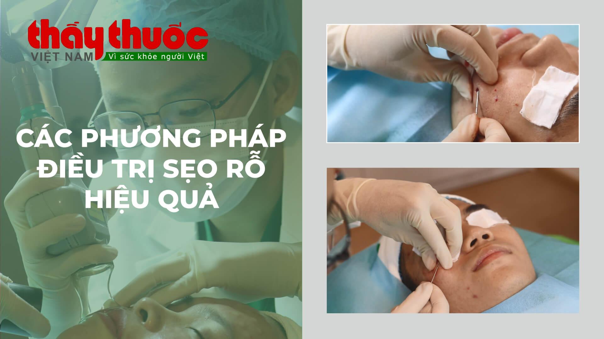 thaythuocvietnam các phương pháp điều trị sẹo rỗ hiệu quả
