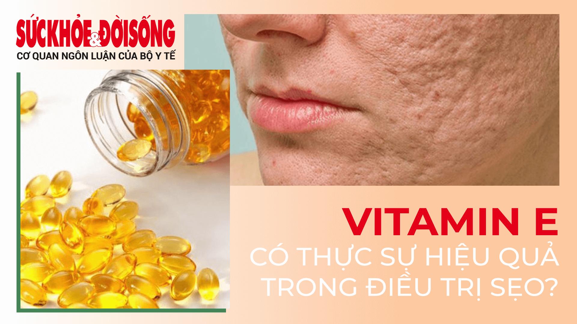 Hiệu quả thực sự Vitamin E điều trị sẹo