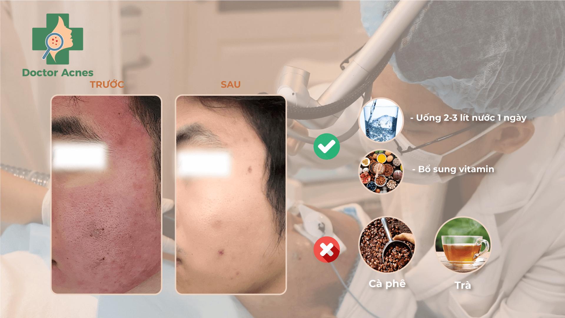 Những lưu ý sau điều trị sẹo rỗ - Doctor Acnes