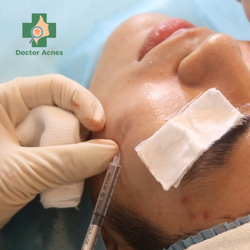 Mesotherapy PRP