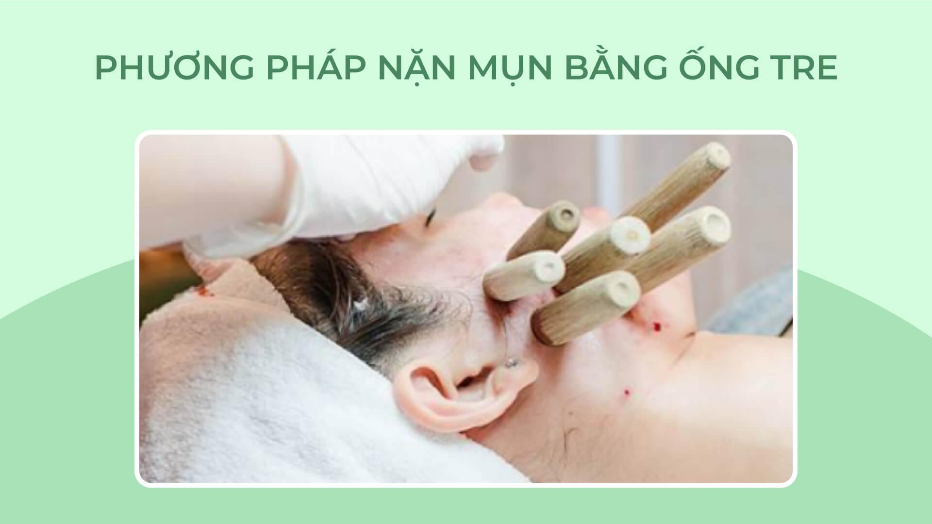 Phương pháp nặn mụn ống tre tại spa - Doctor Acnes
