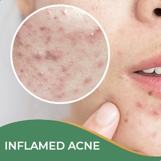 Inflamed Acne Treatment
