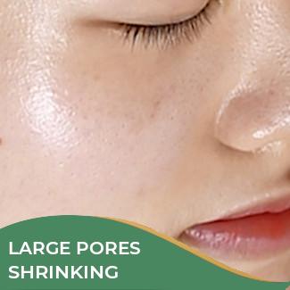 Large Pores Shrinking