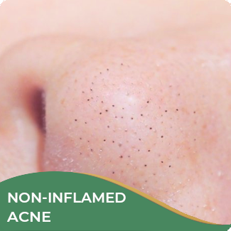 Non-inflamed Acne Treatment